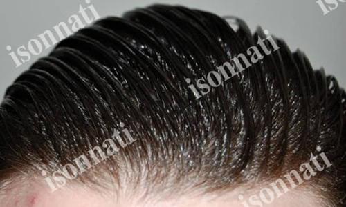 تاثیر شامپو سنتیبرای موهای چرب