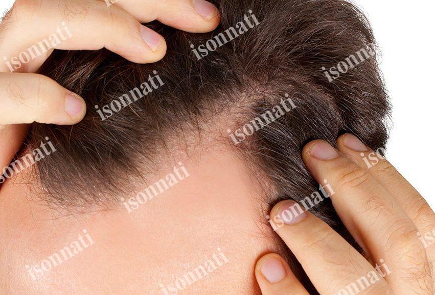 تاثیر مزاج گیاهان بر روی مو